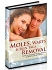Moles, Warts and Skin Tags Removal PDF